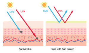 Normal skin vs. skin with sunscreen protection